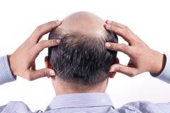 Den skalliga affärsmannen med hans huvud skalperar på sikt bakifrån med wh royaltyfri fotografi