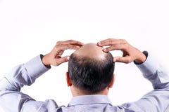 Den skalliga affärsmannen med hans huvud skalperar på sikt bakifrån med wh fotografering för bildbyråer