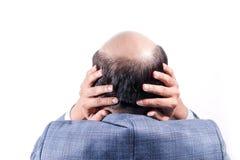 Den skalliga affärsmannen med hans huvud skalperar på sikt bakifrån med wh royaltyfria bilder