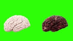 Den sunda hjärnan och sjukdomhjärnan på den gröna skärmen roterar Obduktionläkarundersökningbegrepp Cancer och rökaproblem stock illustrationer