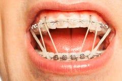 Den tand- hänglsen med den orthodontic latexet ringer på Fotografering för Bildbyråer