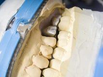 Den tand- teknikeren arbetar med articulatoren i metallstruktur Royaltyfri Fotografi