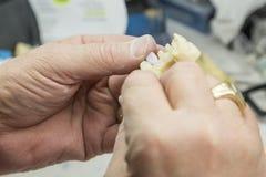 Den tand- teknikeren Working On 3D skrivev ut formen för tandimplantat Arkivfoto