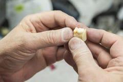 Den tand- teknikeren Working On 3D skrivev ut formen för tandimplantat Royaltyfri Foto
