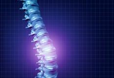Den tillbaka ryggen smärtar royaltyfri illustrationer