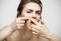 Den unga brunettflickan misshog av hennes hud för problemakneframsidan över vit bakgrund Vård- cosmetology och skincare Arkivbild