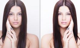 Den unga kvinnan, retuscherar före och efter, skönhetbehandling Före och efter kosmetisk operation Royaltyfri Foto