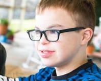 Den unga pojken med besegrar syndrom Royaltyfri Fotografi