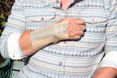 Den upprepande belastningsskada-handleden spjälkar. arkivbild