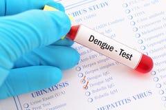 Denga test obrazy stock