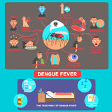 Dengue Fever Infographics. Vector Illustration. Dengue Fever Infographics. Flat Vector Illustration Poster the symptoms and treatment of diseaseb Stock Photography