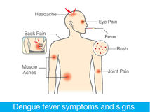 Dengue fever symptoms and signs. Diagram for health check when have dengue fever symptoms and signs Stock Photography