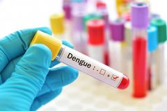 Dengue positive. Blood sample positive with dengue virus royalty free stock image