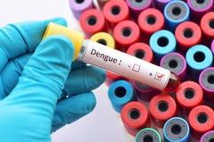 Dengue positive Stock Image
