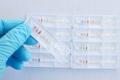 Dengue testing positive Stock Image