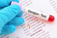 Dengue virus test. Blood sample with requisition form for dengue virus test Stock Photo