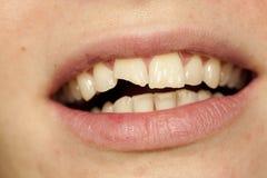 Dent cassée Photo libre de droits