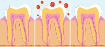 Dent cure. Three phase of caries treatment,  illustration additional Stock Photography