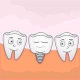 Dent d'implantation Photos stock
