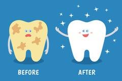 Dent de bande dessinée avant et après le nettoyage ou blanchiment ou les procédures dentaires illustration libre de droits
