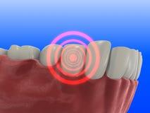 Dent douloureuse Photo stock