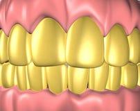 Dentadura Foto de archivo libre de regalías