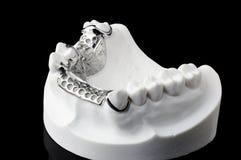 Dentadura imagen de archivo