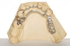 Dentadura Imagem de Stock