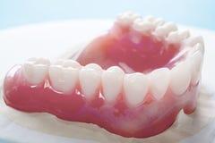 Dentadura completa o dentadura llena imágenes de archivo libres de regalías