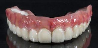 Dentadura, puente dental Imagen de archivo