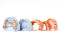 Dentaduras 2 Fotografía de archivo