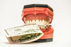 Dentaduras dentais isoladas no branco Foto de Stock