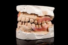 Dentaduras em um molde de emplastro Fotos de Stock Royalty Free