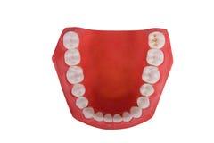 Dentaduras, prótese dental Imagens de Stock