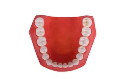 Dentaduras, prótesis dental Imagenes de archivo