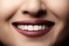 dentaire Le sourire heureux avec les lèvres rouges préparent, les dents saines blanches photographie stock libre de droits