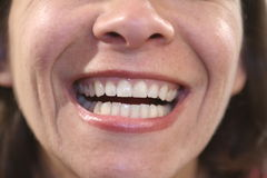 Dental. Woman showing teeth Royalty Free Stock Photos