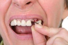 Dental Stock Photography