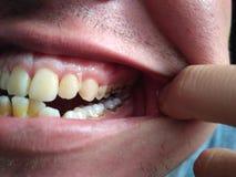 dental foto de archivo libre de regalías