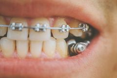 Dental appliance and braces. Braces and dental appliance for deep bite. An overbite, also known as a malocclusion or an overjet, is when the lower jaw is not Royalty Free Stock Images