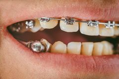 Dental appliance and braces. Braces and dental appliance for deep bite. An overbite, also known as a malocclusion or an overjet, is when the lower jaw is not Royalty Free Stock Image