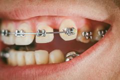 Dental appliance and braces. Braces and dental appliance for deep bite. An overbite, also known as a malocclusion or an overjet, is when the lower jaw is not Stock Photo