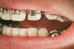 Dental appliance and braces. Braces and dental appliance for deep bite. An overbite, also known as a malocclusion or an overjet, is when the lower jaw is not Stock Images