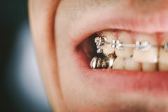 Dental appliance and braces. Braces and dental appliance for deep bite. An overbite, also known as a malocclusion or an overjet, is when the lower jaw is not Stock Photos