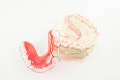 Dental brace and retainer Royalty Free Stock Photo