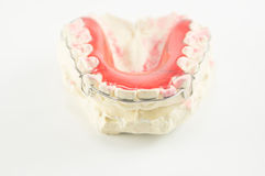 Dental brace and retainer Royalty Free Stock Image