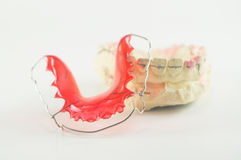 Dental brace and retainer. On white background Royalty Free Stock Photo