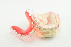 Dental brace and retainer Stock Image