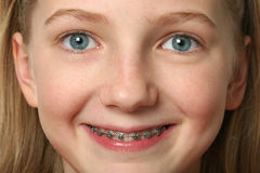 Dental Braces stock photos