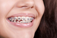 Dental braces royalty free stock photography